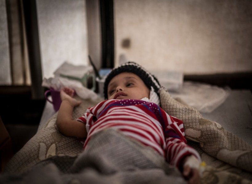 A child lies on a bed in the MSF cholera treatment centre at the Al Thawra hospital in Ibb governorate, September 2017.