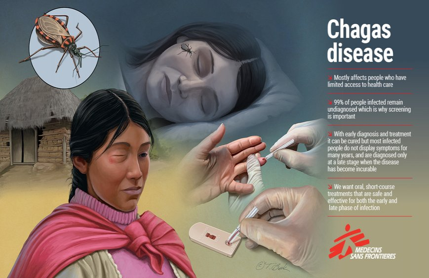 In a period of reduced international travel due to COVID19, MSF challenged medical illustrator Todd Buck to create six high quality custom medical illustrations that depict some of the most life-threatening and neglected tropical diseases that MSF treats.