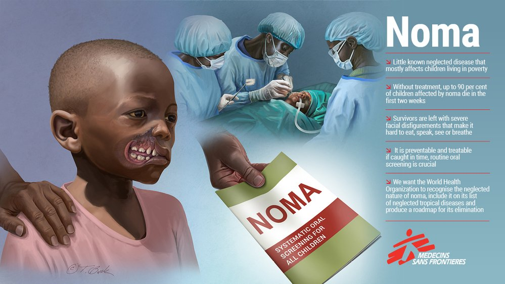 MSF has been providing direct care to patients with neglected tropical diseases (NTDs) for more than thirty years. Some were affected by noma, a deadly bacterial disease so neglected that it is not yet recognised as an NTD.