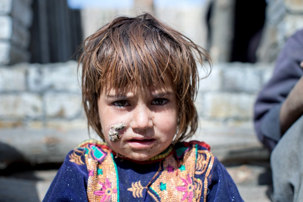 Bakht Bibi, 4, waits to be treated for her sand fly bites at the MSF Cutaneous Leishmaniasis Facility in Kuchlack, Pakistan