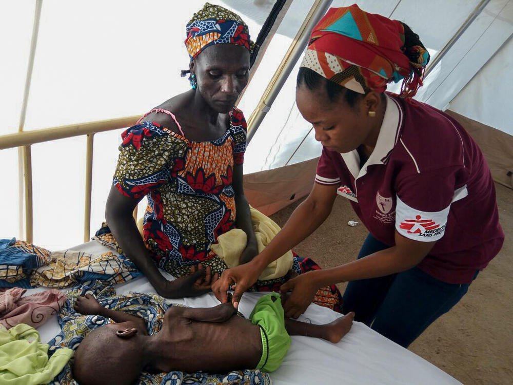 MSF medical staff member attending to a severely malnourished child in Borno State.