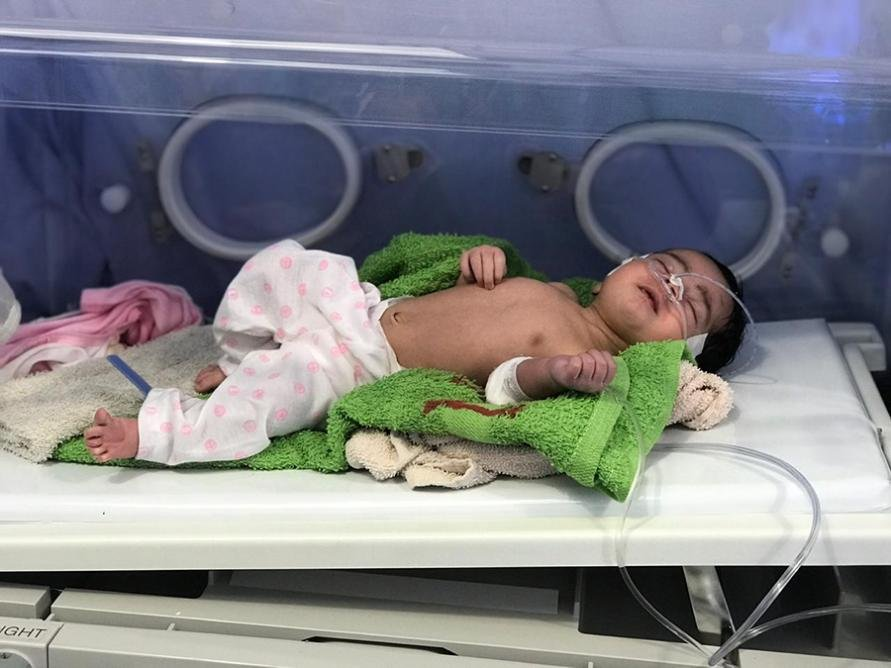 Two-week old Khadeja was admitted to hospital with pneumonia