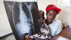 HIV/Aids in Zimbabwe