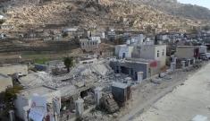 Yemen.Shiara hospital bleeding after attack.